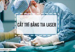 Phương pháp cắt trĩ bằng tia Laser