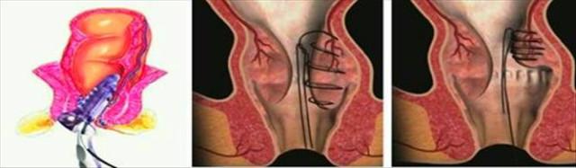 Khâu động mạch trĩ bằng siêu âm dooper