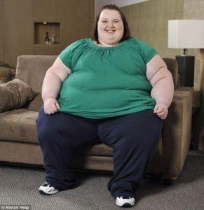 Những người béo phì rất dễ bị bệnh trĩ -1