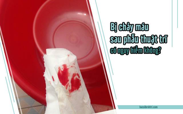 Bị chảy máu sau khi phẫu thuật trĩ có nguy hiểm không ?