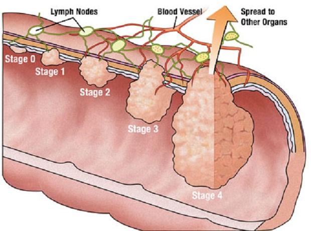Cách phân biệt bệnh trĩ hay polyp trực tràng đơn giản -2