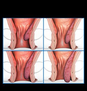 Tư vấn: Bệnh trĩ khi nào cần phẫu thuật cắt bỏ? -1