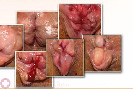 Nhận biết bệnh trĩ giai đoạn đầu và cách điều trị