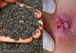 Tác dụng chữa bệnh trĩ bằng vừng đen khiến ai cũng bất ngờ
