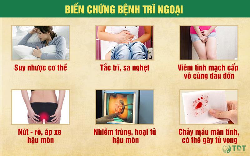 Những biến chứng nguy hiểm khi bệnh trĩ trở nặng
